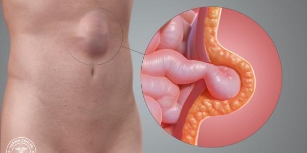 Laparoscopic Incisional Hernia Repair