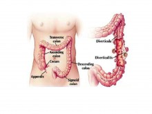 Colon Diverticulosis