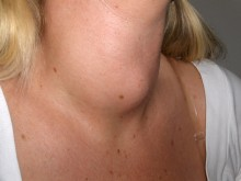thyroid nodule clearly visible