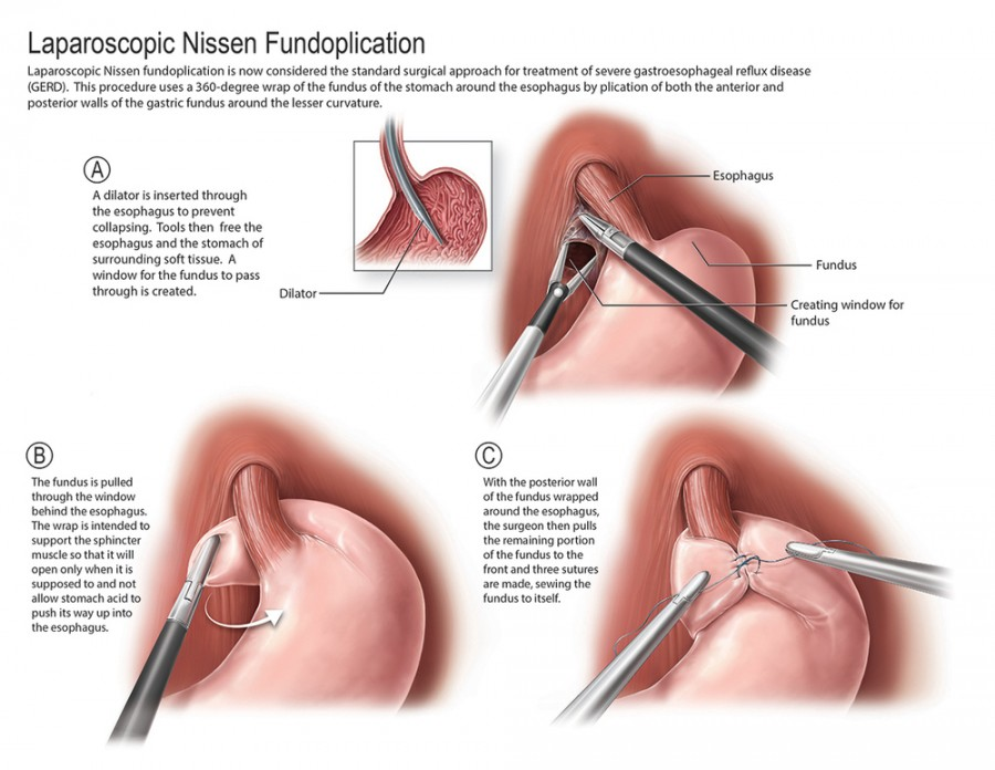GastroEsophageal Reflux Disease Treatment - Dr Anastasios Ch
