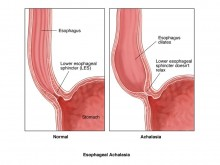 Esophageal Achalasia Overview