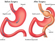 Roux-en-Y Gastric Bypass (RYGB)