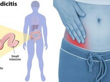 Appendicitis Signs and Symptoms