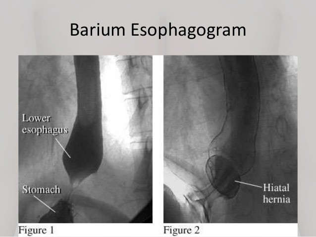 Gastroesophageal reflux disease diagnosis dr anastasios ch gerd diagnosisbarium meal ccuart Choice Image